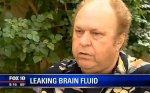 У мужчины с насморком через нос вытекал мозг